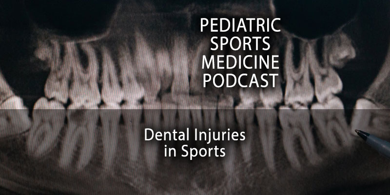 Dental Injuries in Sports